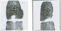 Altered Fingerprints: Burn Method