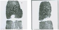Using a heat or chemical source to burn the fingertip, the burn method is intended to scar or obliterate the print. If the affected area is small, fingerprint examiners can use other areas of the fingers that contain sufficient prints to attempt to establish identity.