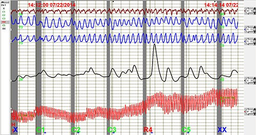 Stock image of the results of a polygraph.