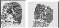 Suspects associated with an unknown method of alteration use a variety of techniques. They may bite or use sandpaper to eliminate fingerprint ridges necessary for identification. As such, law enforcement personnel should record as much detail of the finger as possible, including areas below the first joint.