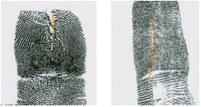 Altered Fingerprints: Vertical Cut or Slice