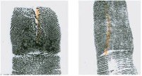The vertical cut or slice modifies the fingerprint by scarring or distorting. Individuals cut down the middle of the fingertip, leaving a fairly straight cut on the fingerprint. In some instances an individual will pull the skin near the cut in different directions in an effort to generate an unusual fingerprint pattern when the fingertip heals.